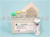 人γ谷氨酰轉移酶elisa試劑盒