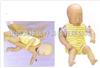 KAH-140气管插管模型|气管插管训练模型|高级婴儿梗塞模型
