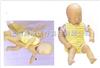 GD/Jl40气管插管模型|气管插管训练模型|高级婴儿梗塞模型