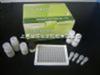 人乙型肝炎病毒核心IgG抗体(HBcAb-IgG)ELISA Kit